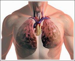 Исследователи разработали революционный метод выявления рака легких.