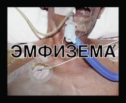 Минздрав России определился со «страшными картинками» на сигаретах (6 фото)
