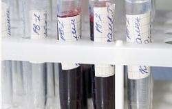 тестирование на ВИЧ