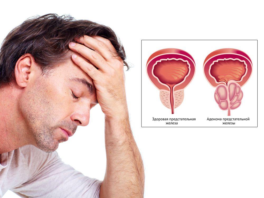 Объем предстательной железы простата