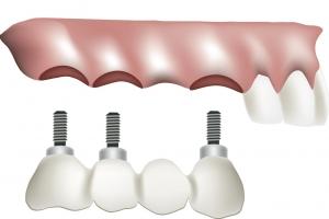 Зубные импланты: всё, что нужно о них знать