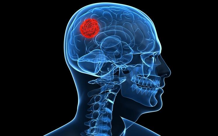 высшим образованием чаще страдают опухолей мозга