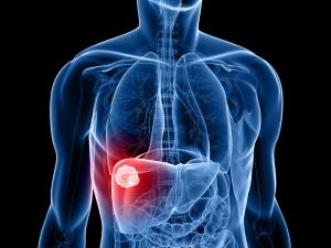 Учеными найден метод лечения рака печени