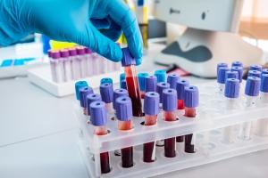 Ученые выяснили, что ферменты могут обнулить группу крови