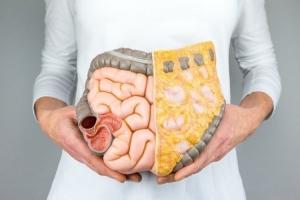 Медики нашли способ замедлить рак толстой кишки
